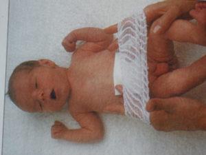 уход за пупочной раной, болезни пупка, туалет ребёнка, болезни новорождённого, новорождённый, младенец