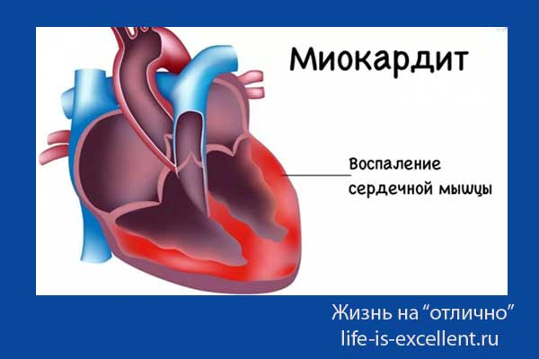 миокардит у детей, причины возникновения миокардита, механизм зарождения миокардита, симптомы миокардита, клиническая картина миокардита, классификация миокардита, патогенез миокардита