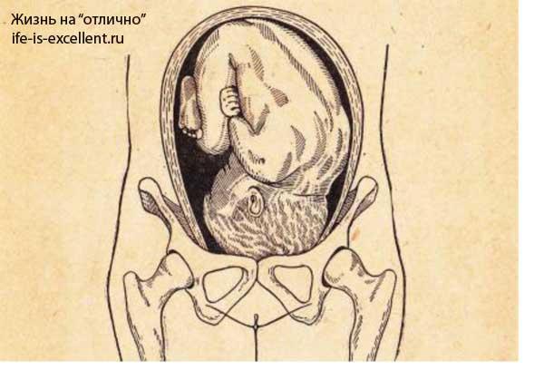 беременность, роды, беременность и роды, развитие беременности, длительность беременности, предлежание плода, строение матки, периоды родового акта