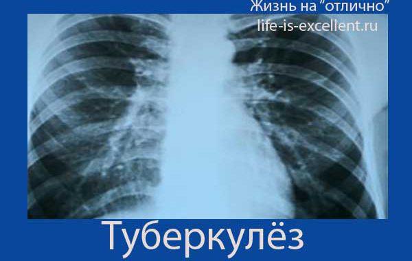 Статистика туберкулёза