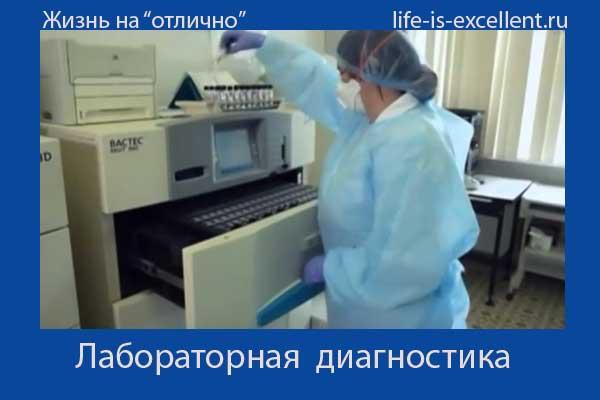 туберкулёз, какие бывают осложнения в ходе заболевания туберкулёзом, профилактика туберкулёза, Диаскинтест, реакция Манту, выявление туберкулёза, как происходит заражение туберкулёзом, симптомы при туберкулёзе, возбудитель туберкулёза, как защититься от туберкулёза, флюорография, туберкулёз и ВИЧ-инфекция,борьба с туберкулёзом