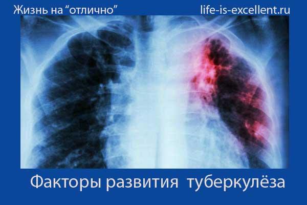 туберкулёз, диагностика туберкулёза, лечение туберкулёза, профилактика туберкулёза, причины заболевания туберкулёзом, пути заражения туберкулёзом, как распространяется туберкулёз, стадии туберкулёза