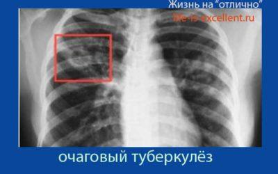 Анализ на туберкулёз