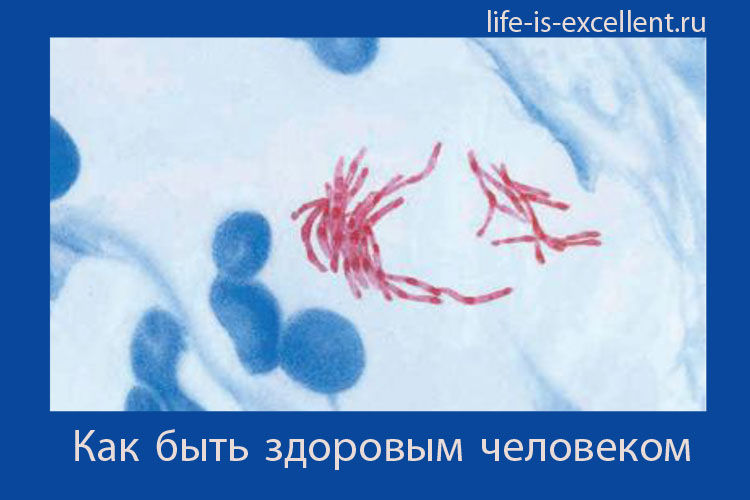палочка Коха, микобактерия туберкулёза