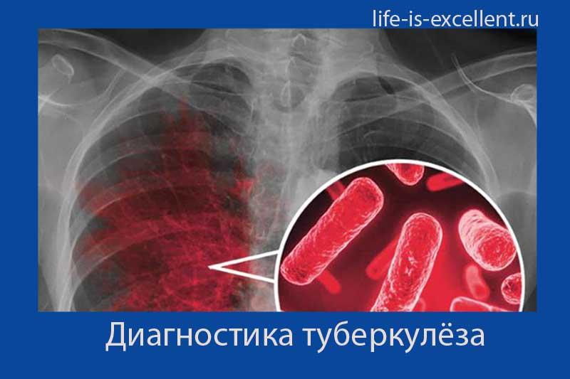 методы диагностики туберкулёза, диагностика туберкулёза, диагностика закрытой формы туберкулёза, диагностика внелёгочного туберкулёза