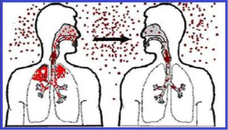 туберкулёз, передача туберкулёза, как передаётся туберкулёз, кашель при туберкулёзе
