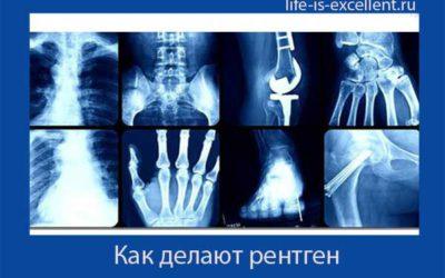 Как делают рентген