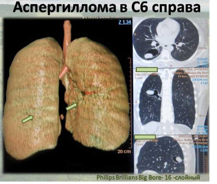 аспергиллёз, лёгочный аспергиллёз, симптом воздушного полумесяца, инвазивный аспергиллёз, аллергический аспергиллёз, некротический аспергиллёз, как можно заразиться Аспергиллёзом, аспергиллы, аспергиллез причины, аспергиллёз симптомы