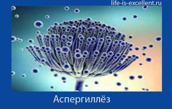 Аспергиллёз