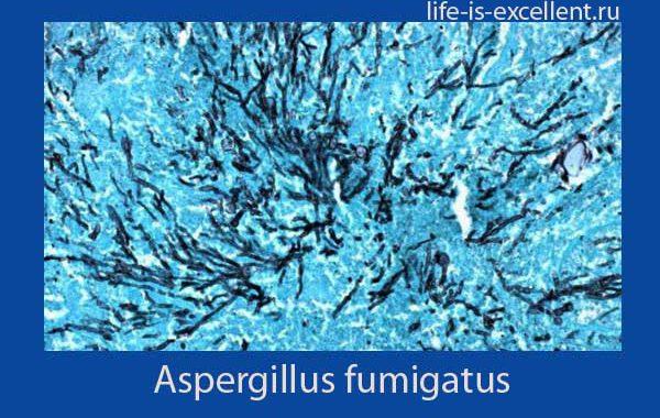 Аспергиллёз у человека