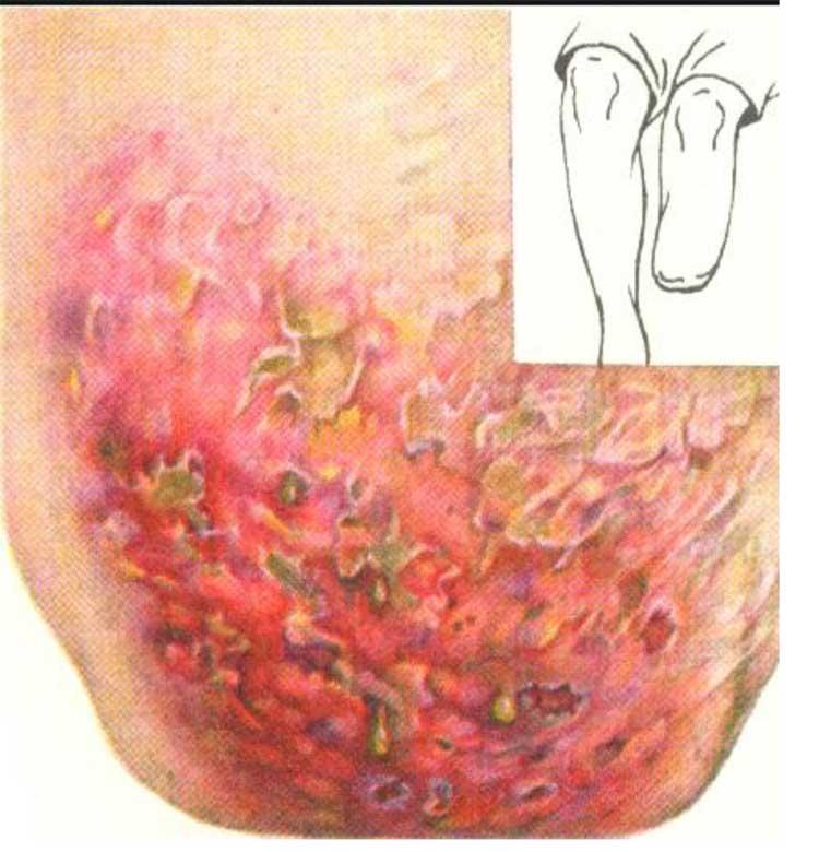 аспергиллёз у человека, аспергиллёз, микоз, смешанные инфекции, аспергиллез IgG положительный, инфильтративно-язвенный аспергиллёз культи голени