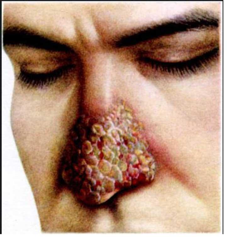 инфильтративно-папилломатозный аспергиллёз кожи носа, аспергиллёз у человека, аспергиллёз, микоз, смешанные инфекции, аспергиллез IgG положительный