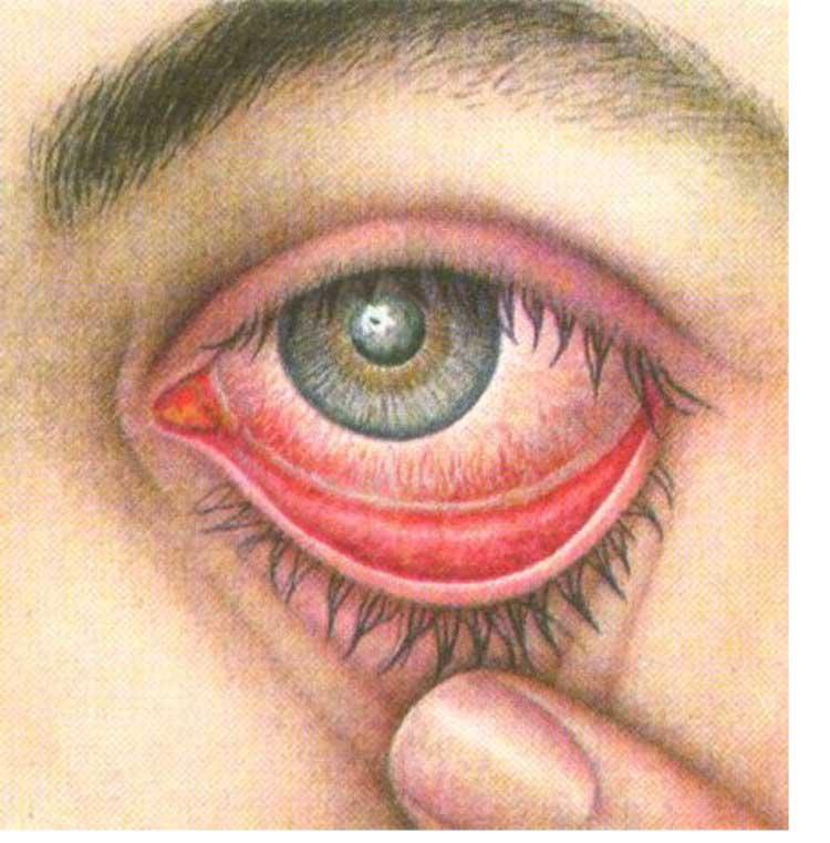 язвенный аспергиллёз роговицы глаза, аспергиллёз у человека, аспергиллёз, микоз, смешанные инфекции, аспергиллез IgG положительный