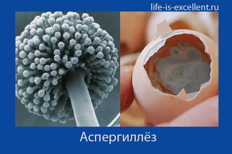 аспергиллёз, что такое аспергиллёз, возбудитель аспергиллёза, как заражаются аспергиллёзом, аспергилл, микоз лёгких