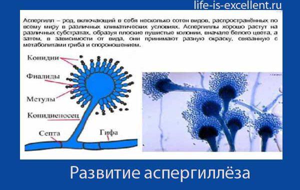Аспергиллёз, факторы риска