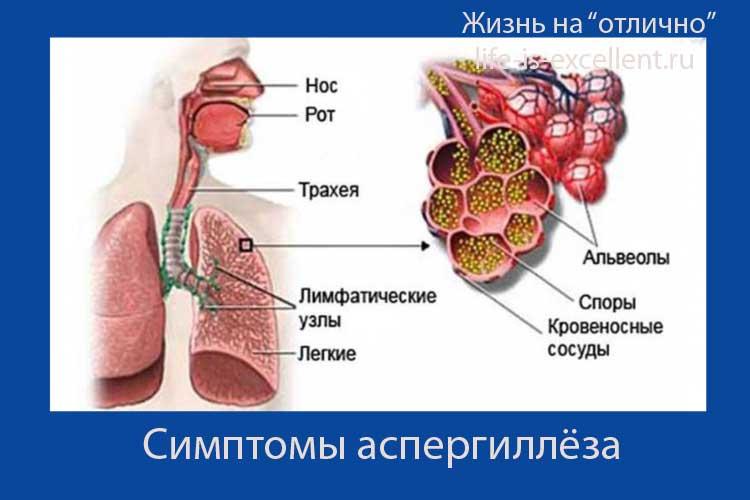 чем опасна плесень, лёгочный аспергиллёз, первичный экзогенный бронхолёгочный аспергиллёз, аспергиллёз у человека, аспергиллёз, микоз, смешанные инфекции, аспергиллез IgG положительный